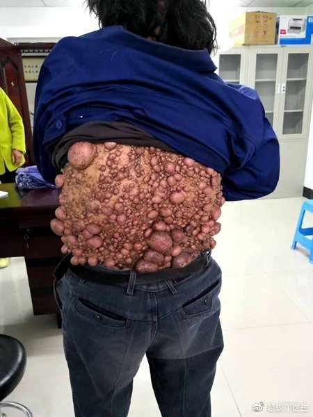 56歲的王姓男子渾身上下布滿密密麻麻、大大大小的腫瘤。圖取自微博
