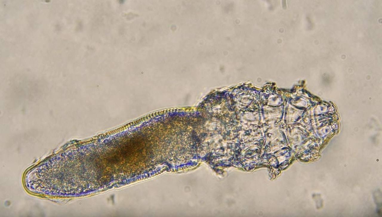 毛囊蠕形蟎只有約0.3毫米長,有8隻腳,壽命約2周。(影片截圖)