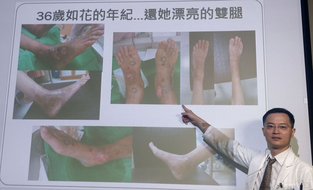 醫師張偉俊說明,少婦經接受導管氣球擴張術,打通雙腳的血管,保住雙腳。記者趙容萱/...