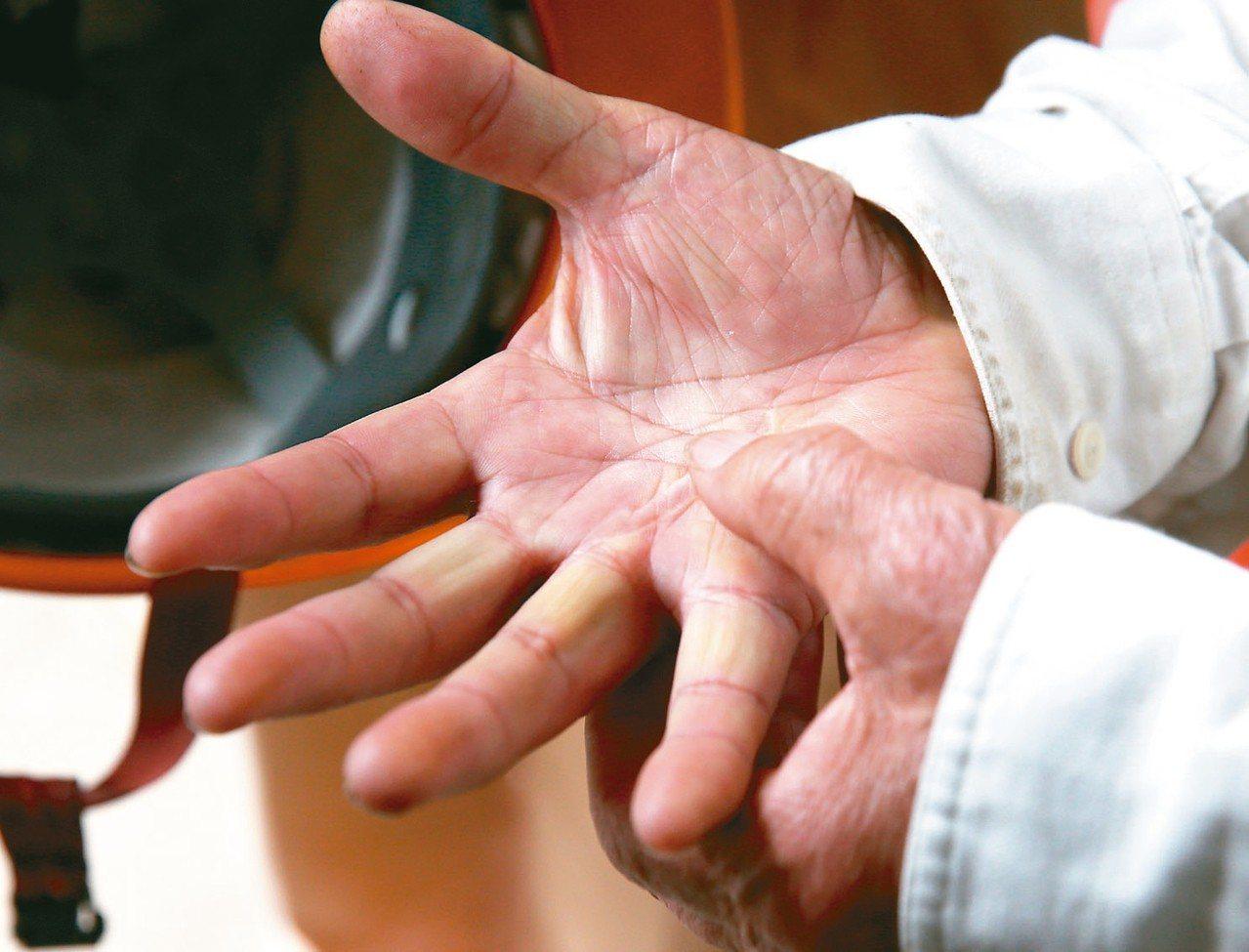 日本石雕家和泉正敏的手沒有想像中粗糙,但仍然可見清楚的傷疤。 記者林澔一/攝影