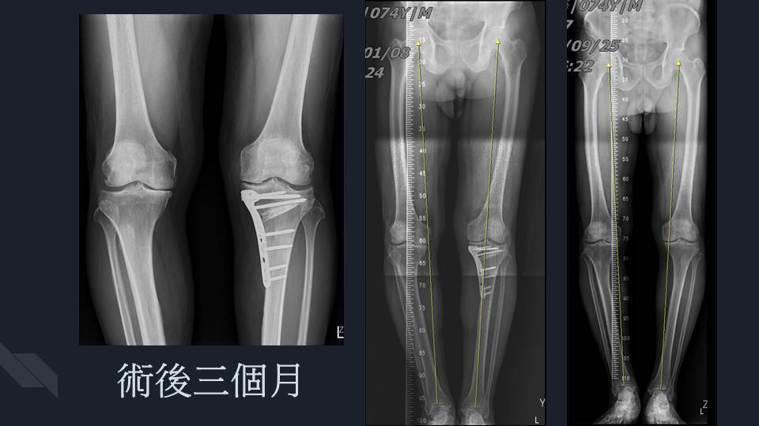 右膝內翻性退化性關節炎患者接受精準高位脛骨矯正保膝手術後的術後x光照片。圖/安南...