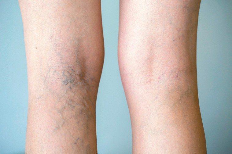 失去功能的靜脈膨大形成靜脈曲張,甚至產生血塊造成局部發炎,彈性襪僅能延緩惡化。 ...
