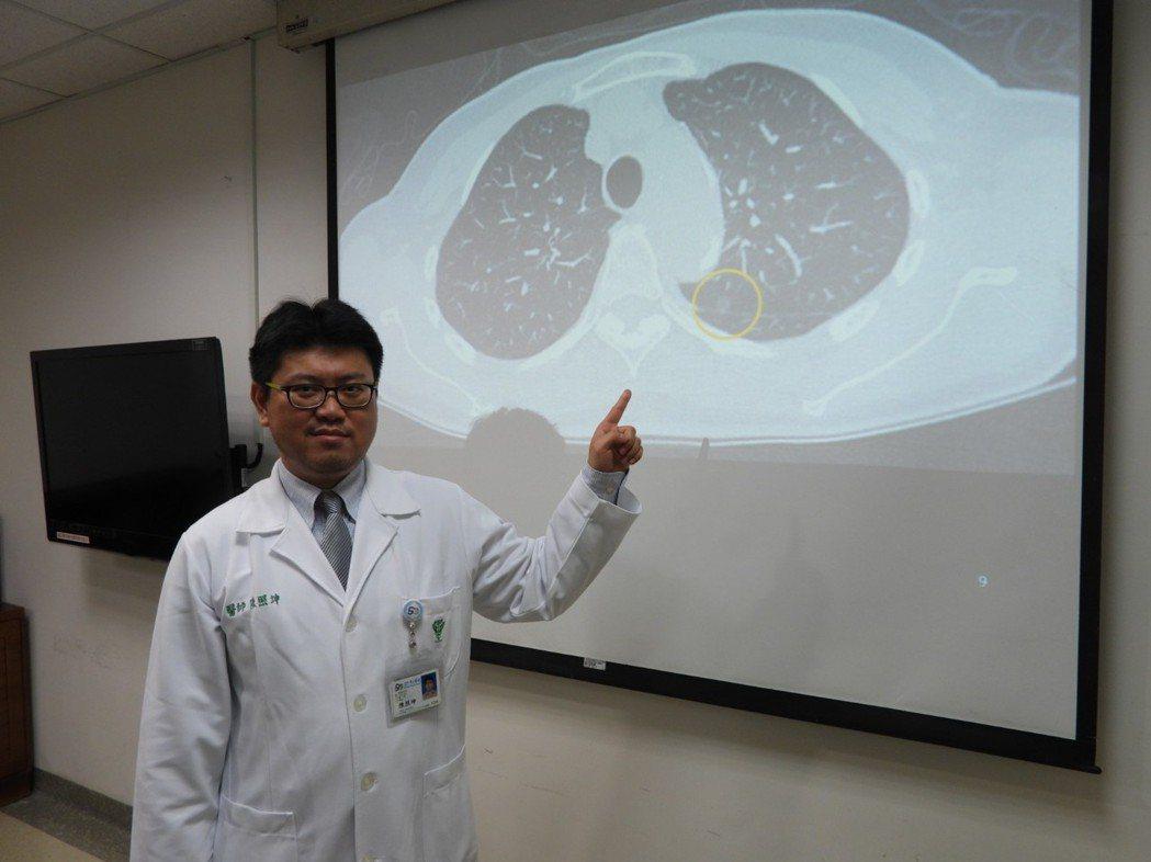 肺部1公分以下小結節X光照射無法發現,醫師呼籲定期做電腦斷層檢查。記者周宗禎/攝...