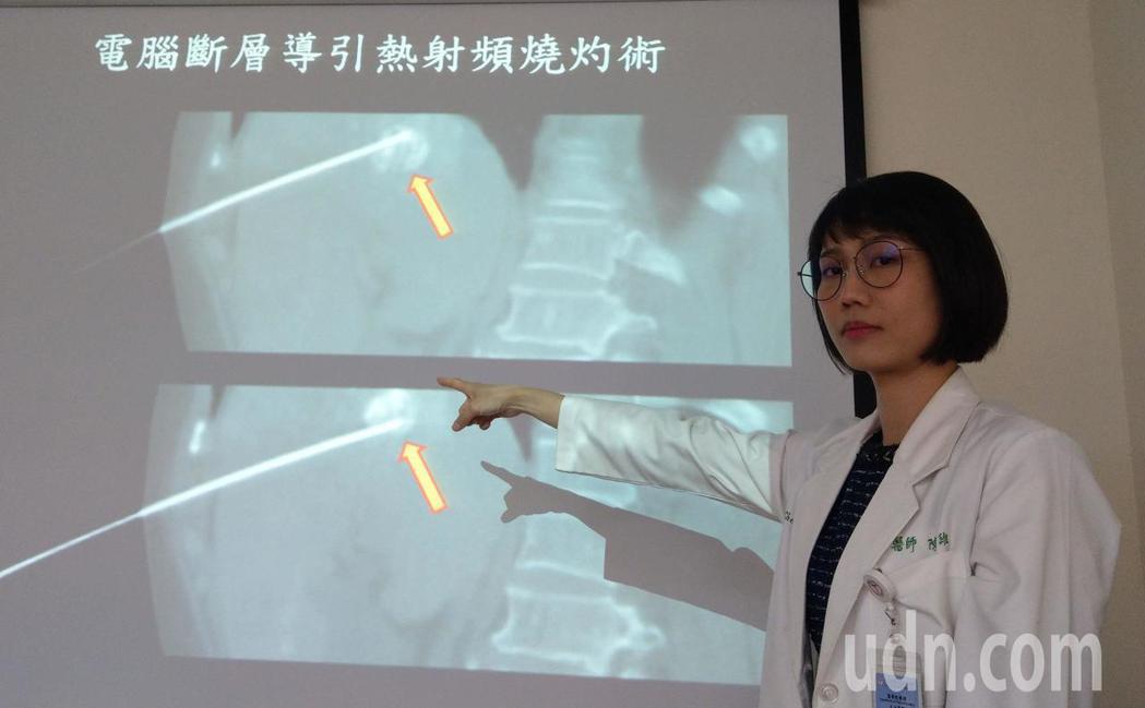 醫師陳智維說明,74歲老婦人經接受動脈化療栓塞合併電腦斷層導引熱射頻燒灼術後,癌...