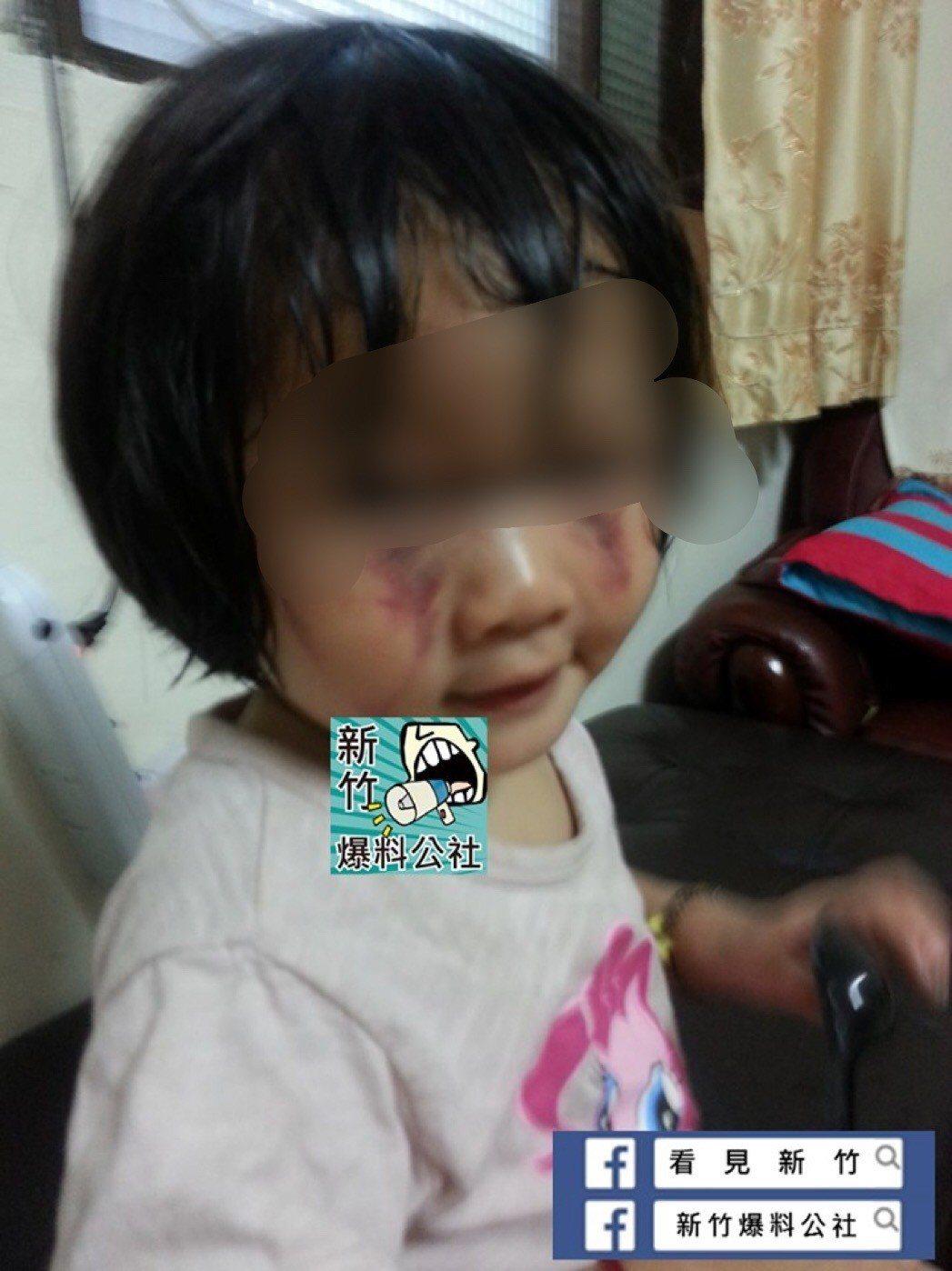 2歲女被繼父打成貓熊眼後緊急安置 生母竟帶走求復合