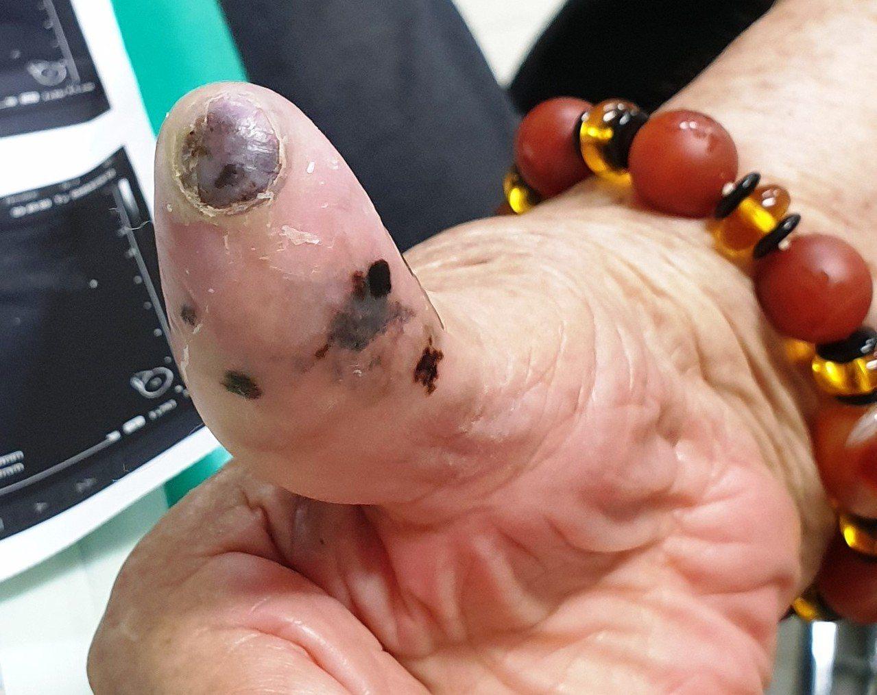 阿嬤摸到腋下有不明腫塊 竟是手指的30年黑痣癌變