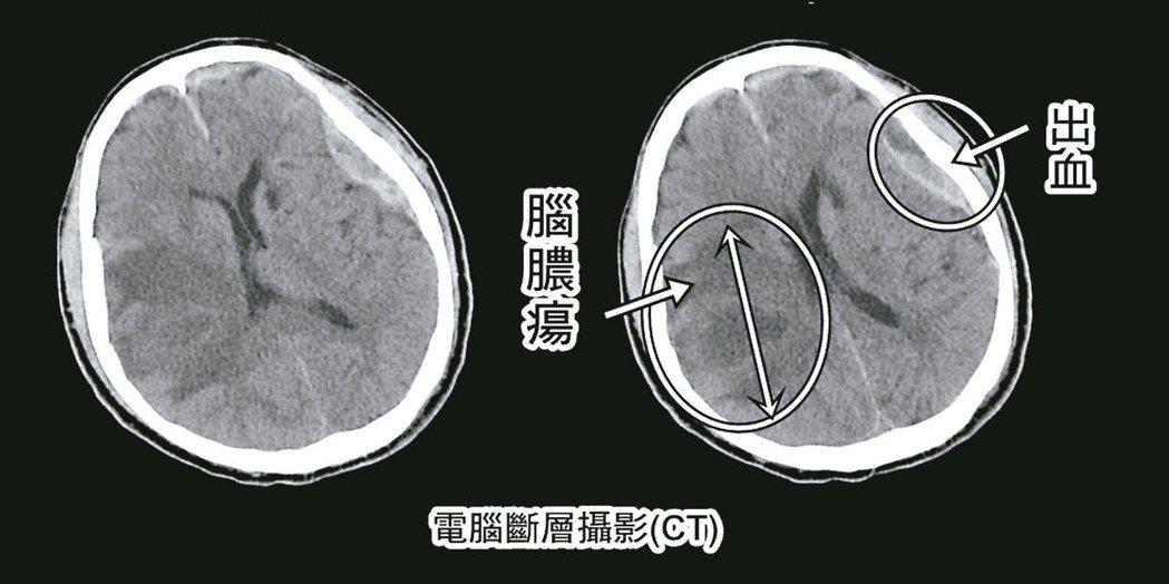 腦膿瘍的電腦斷層影像。 圖/衛福部台北醫院提供