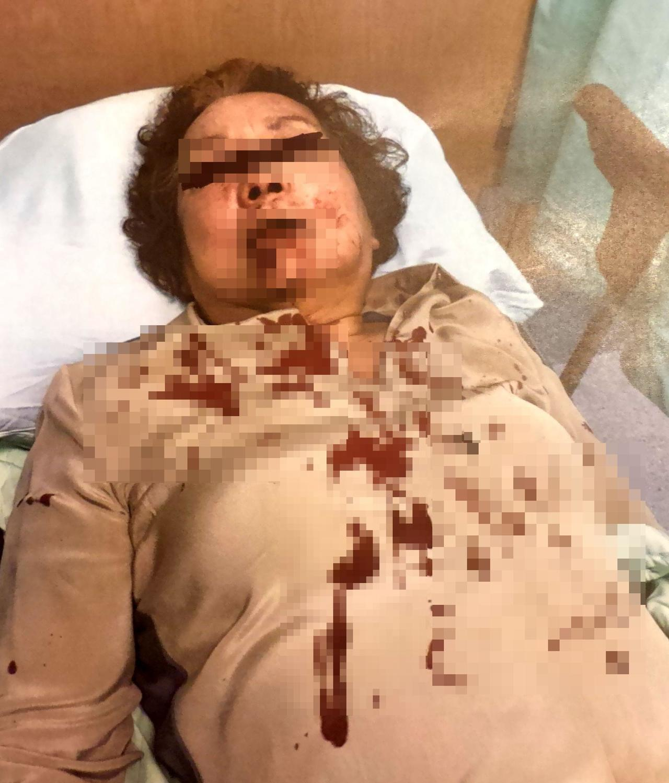 阮綜合醫院副院長妻子今天遇襲。圖/阮婦家人提供