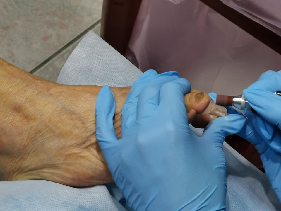 醫師嚴炯誥指出,接受標靶治療的癌症病人常見有凍甲困擾,提醒患者接受標靶治療前可先...