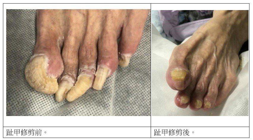 長照養護中心內有不少長輩的腳趾甲「年久失修」,外型猶如「鷹爪」,嚴炯誥和兩名健甲...