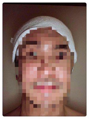 唐從聖PO腫臉照但打上馬賽克。圖/摘自臉書
