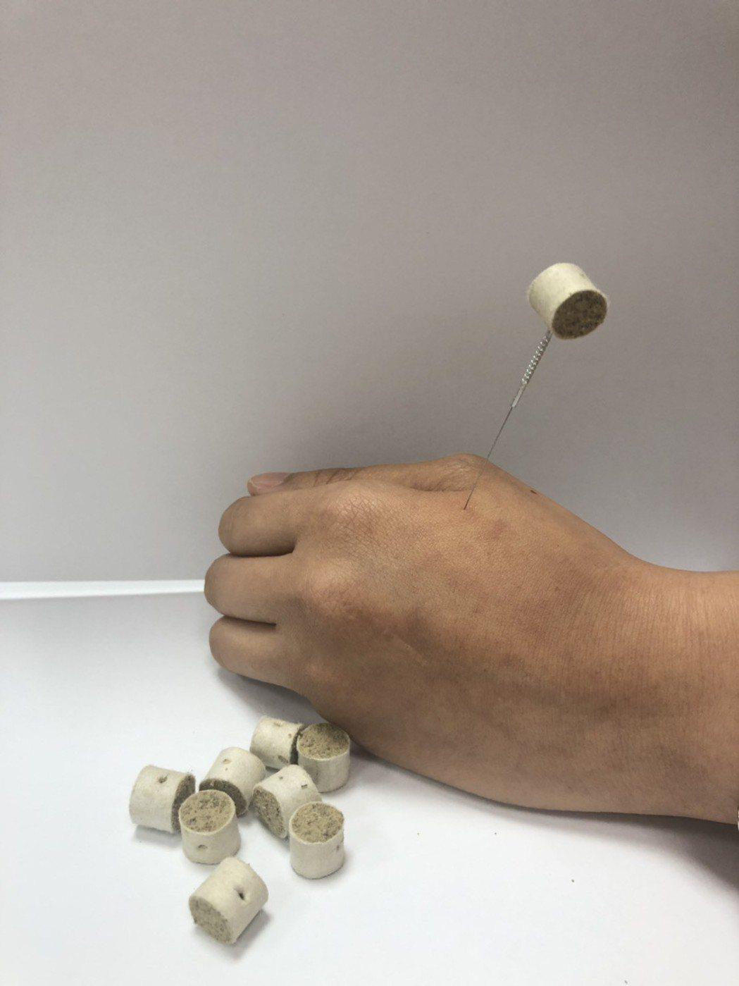 中醫會將「艾粒」運用在針灸治療上。圖/員生醫院提供