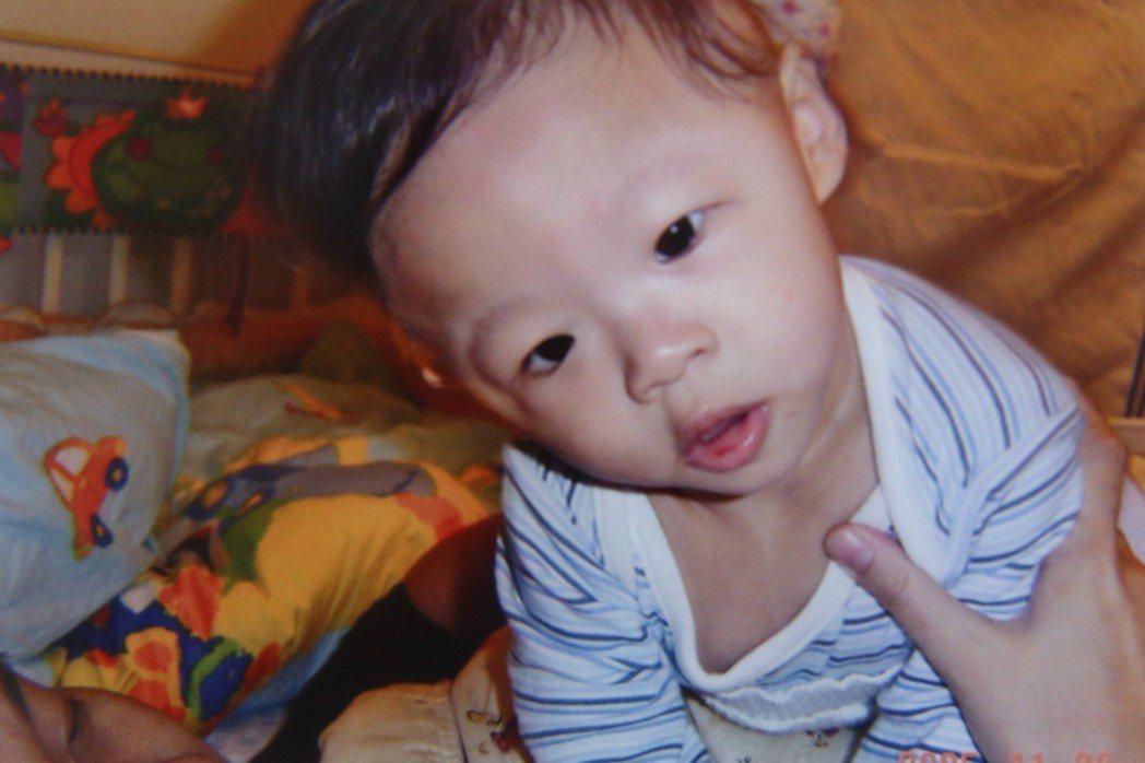 彥廷六個月大時脖子歪斜,醫師懷疑是罕見疾病威廉斯氏症。圖/施佳雯提供