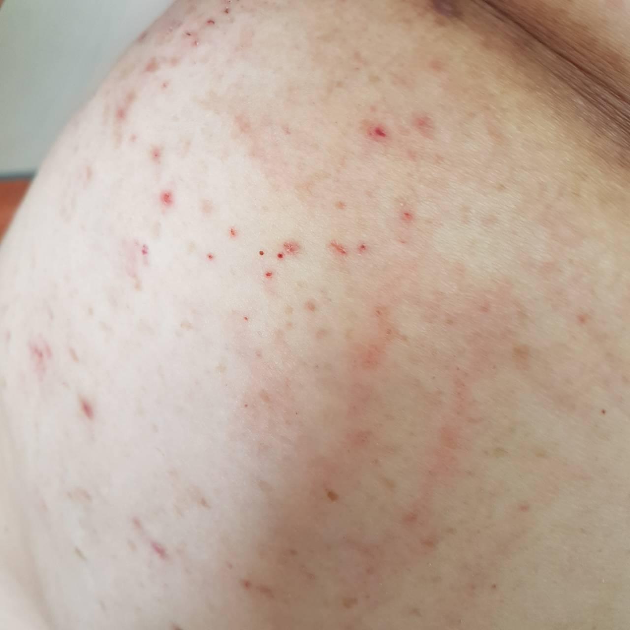 噁!疑未妥善照護 桃市某安養機構遭爆疥瘡感染