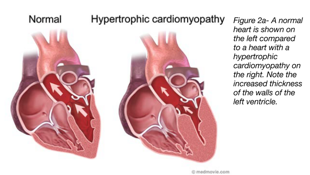From AHA Hypertrophic Cardiomyopathy Pat...