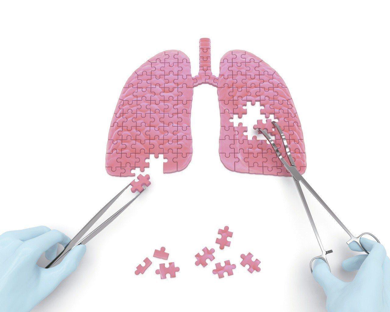 肺癌高居我國癌症十大死因首位,醫界致力提升治療效率,為患者爭取存活期。圖/123...