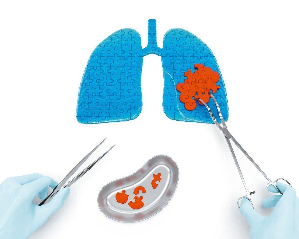 根據衛福部106年十大癌症死因排名,肺癌從99年起蟬聯榜首至今,雖然近年國人對肺...