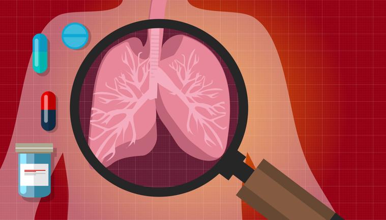 在十幾年前,晚期肺癌患者幾乎都無法活過一年,近幾年,抗癌武器越來越多,包括化療、...