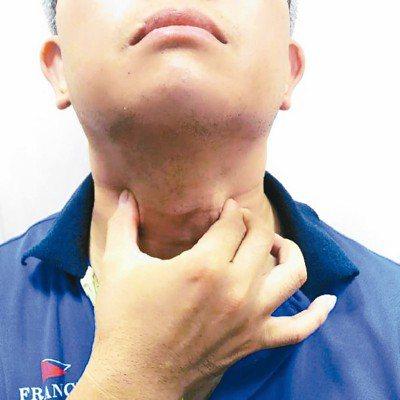 喉嚨不舒服,除了飲食保養外,還可按摩脖子前端兩側穴道,頸部肌肉放鬆,將會有所助益...