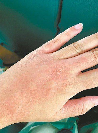 有些人的體質容易成為蚊子的目標,隨便一咬都是好幾個包。 記者張曼蘋/攝影