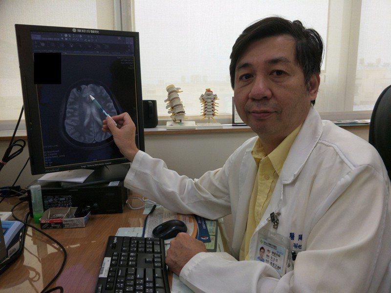 童綜合醫院醫師周啟文說明,婦人腦部腫瘤位置。圖/童醫院提供