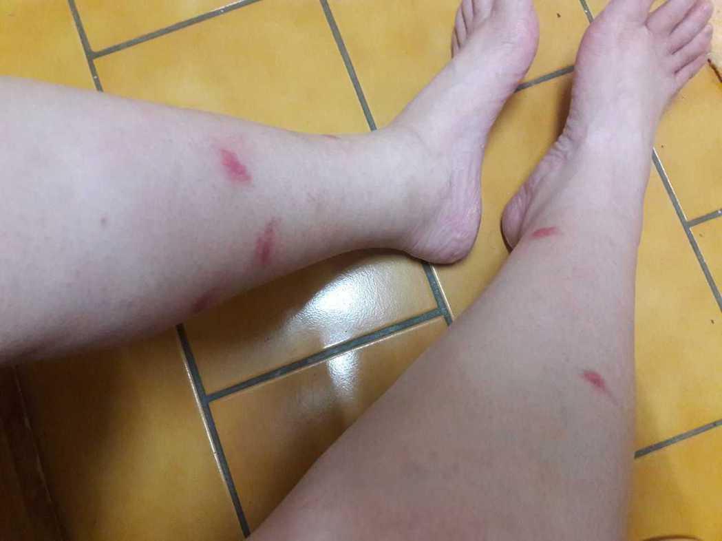 天氣漸熱,小黑蚊活動越加頻繁,不少民眾在戶外活動被小黑蚊攻擊。圖/擷取自臉書社團...