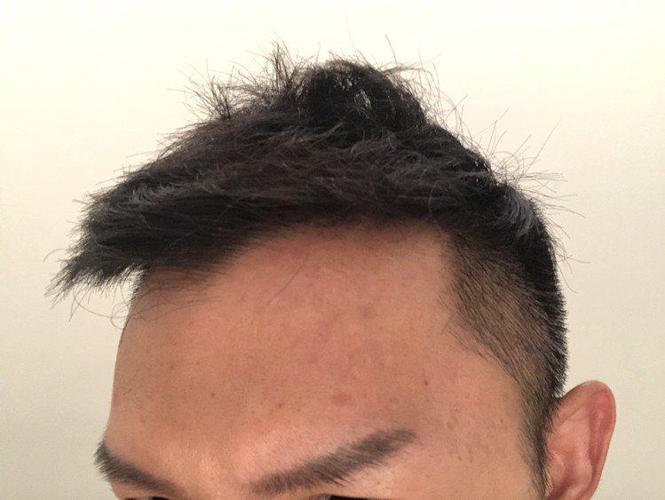 臉部沒有清潔乾淨,夏天油脂分泌較旺盛,阻塞毛孔,就容易好發痘痘。記者劉小川/攝影