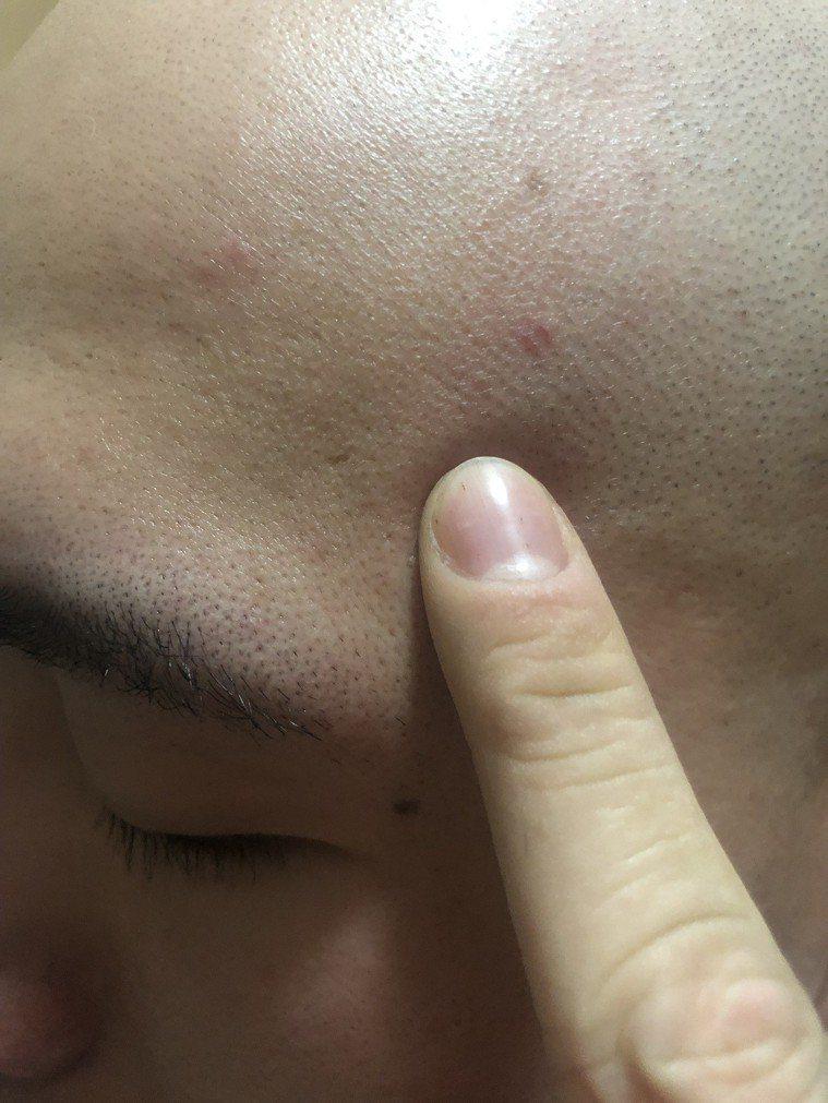 臉上如果已經長了痘痘,也千萬別去觸摸,手上的細菌很多,會讓痘痘發炎更嚴重。記者劉...