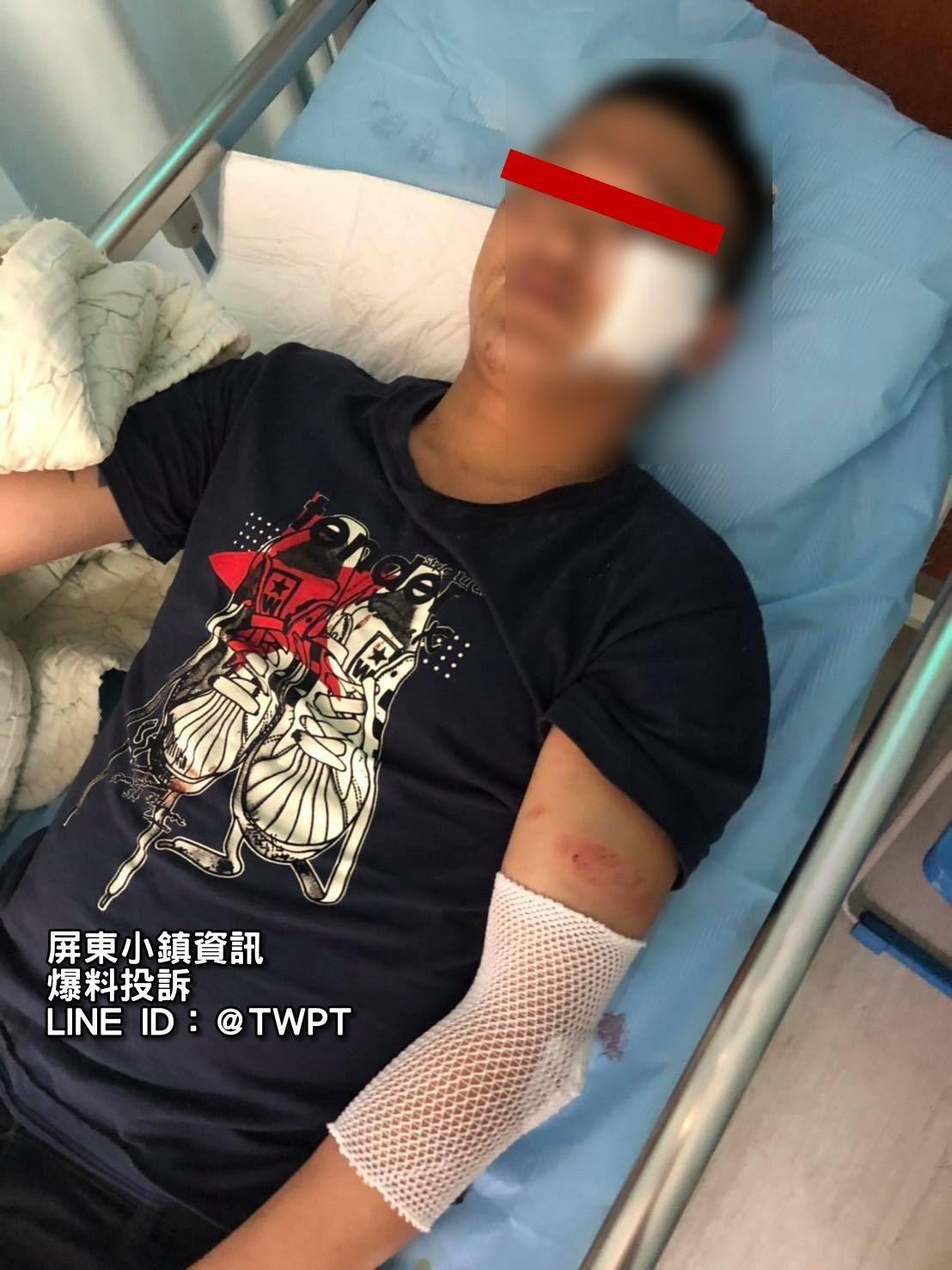 屏東1名男子外出買消夜,返回住處竟被數十惡煞包圍痛毆送醫。記者江國豪/翻攝