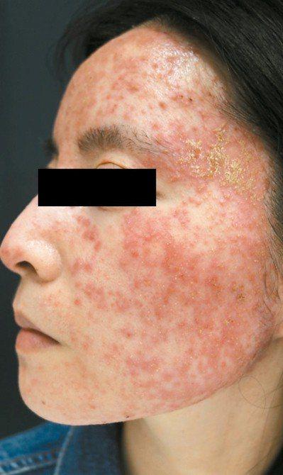 31歲女性塗抹外用類固醇後,酒糟丘疹大爆發,臉部紅通通(圖),經檢查臉部每平方公...