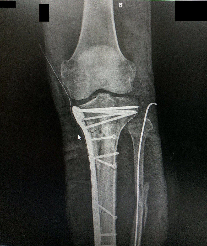 醫師確認陳姓男子腿部血液循環穩定後,為他進行內部固定手術,術後安排復健,出院時已...