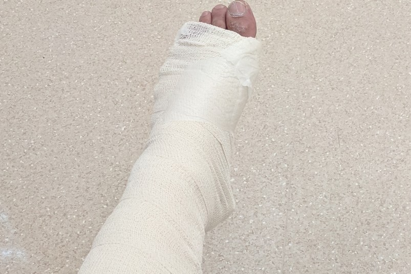 左腳板骨裂,能學會什麼?