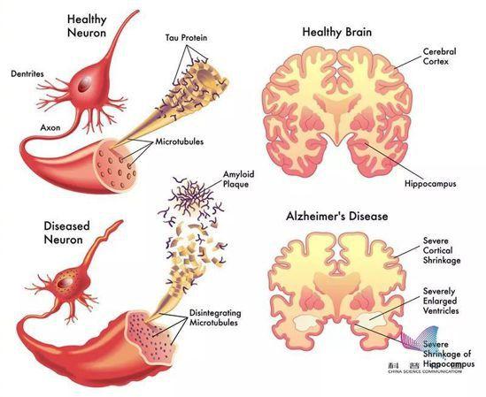 正常大腦(上)和患阿爾茲海默症的大腦(下)