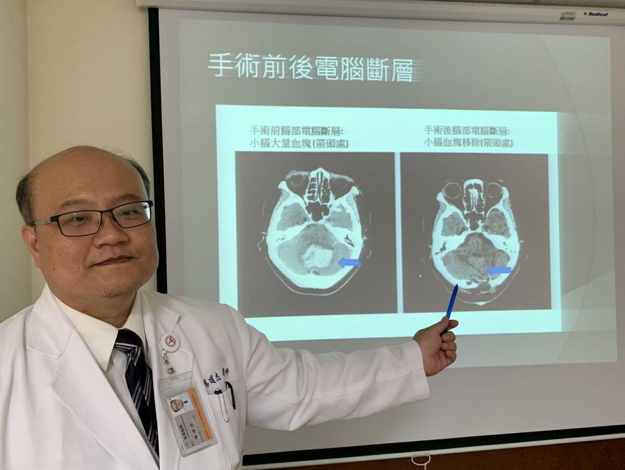 醫師楊道杰建議,民眾若有脈搏性耳鳴時,請儘快就醫。圖/中山附醫提供
