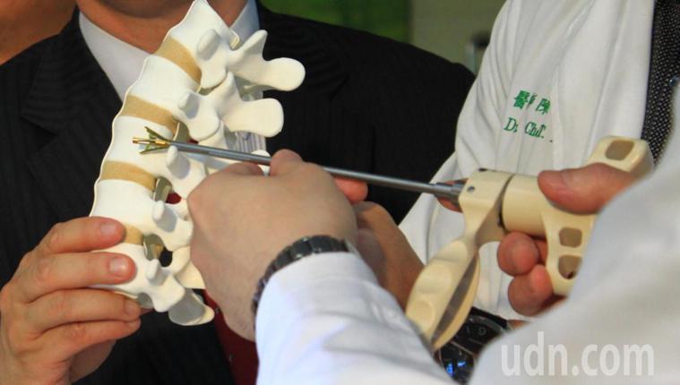 「椎體撐開器」是技術門檻非常高的永久性植入物醫療器材,需要經過多道精密金屬加工程...