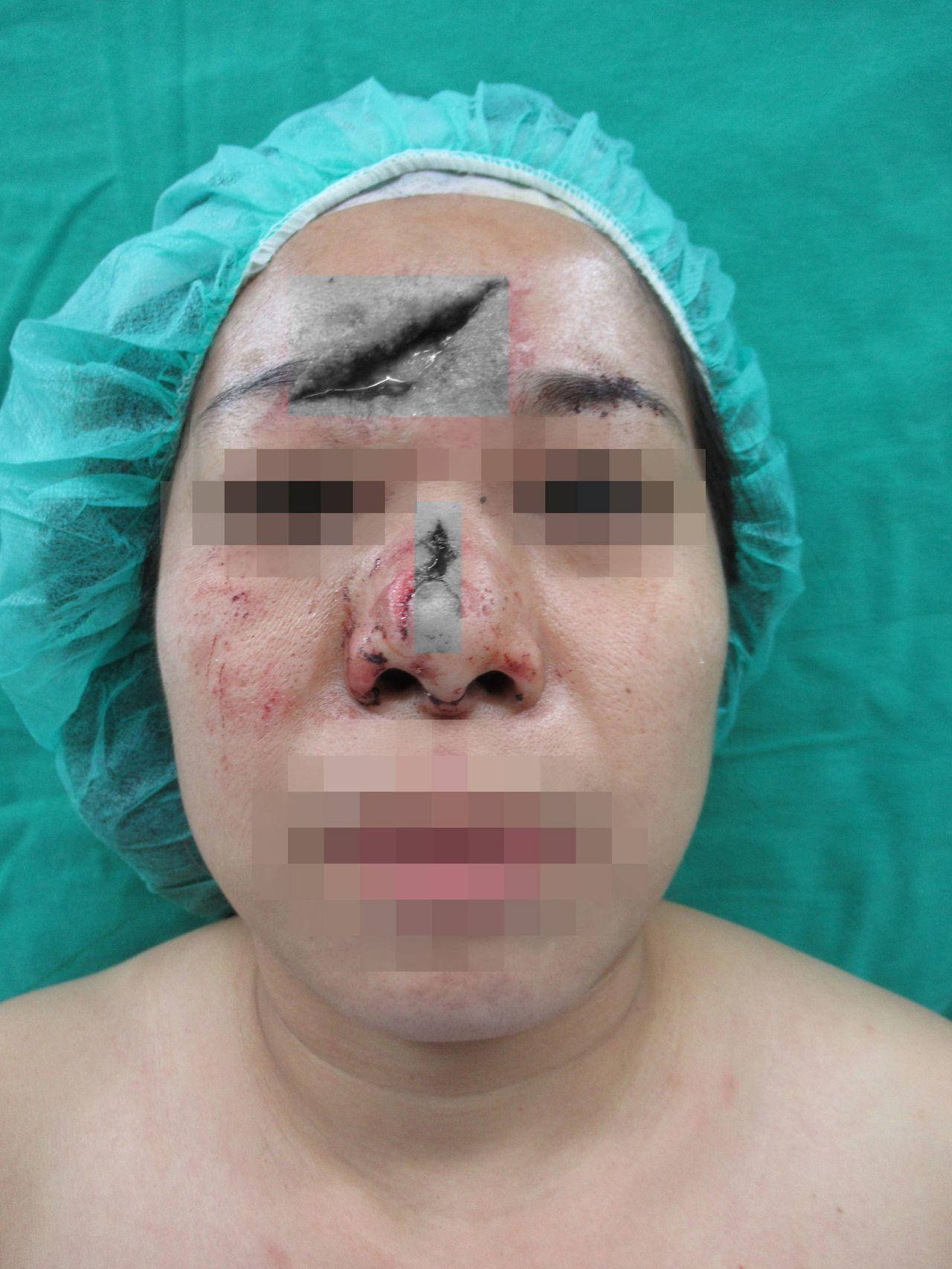 許小姐因跌倒受傷,額頭撞出大窟窿,鼻部還歪斜變形伴隨一條5公分缺損傷口。(傷口變...