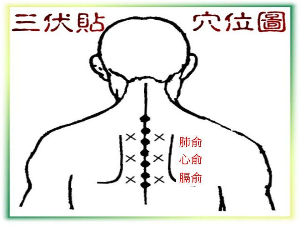 三伏貼穴位圖 圖片提供/陳潮宗醫師