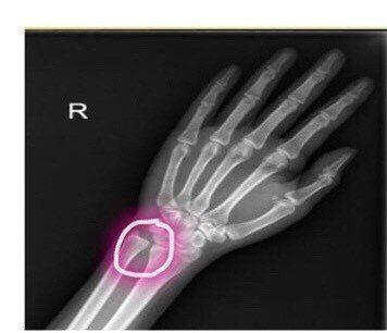 三角纖維軟骨損傷患者,治療前遠端橈骨及尺骨關節分開,手腕無力。圖/安南醫院提供