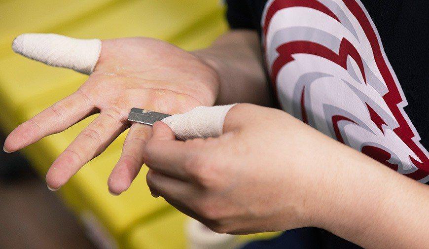 陳恩慈的手掌因密集訓練長繭、破皮,成就金牌榮譽的印記。 圖/劉千鈺