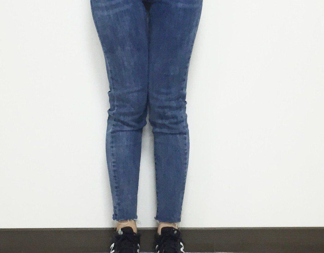 羅東博愛醫院提醒,X型腿長期下來,會造成膝關節兩側受力不平衡,成年後恐面臨關節提...