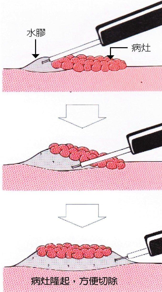 將水膠沿著扁平的病灶周圍塗抹,可以將水膠想像成橡皮圈,將長得太平坦的瘜肉或腫瘤「...