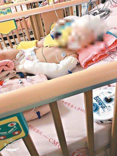 一歲女童疑遭保母虐待案,日前送醫急救開刀後,因傷重可能成植物人,女童母親昨沉痛表...