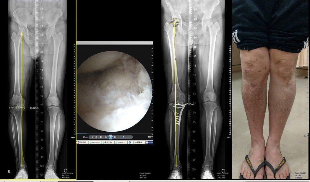 截骨手術有機會保留原來的膝關節。圖/安南醫院提供
