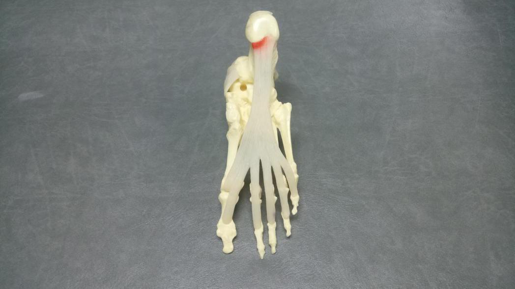 箭頭處為常見足底筋膜炎疼痛位置。 台大醫院新竹分院/提供
