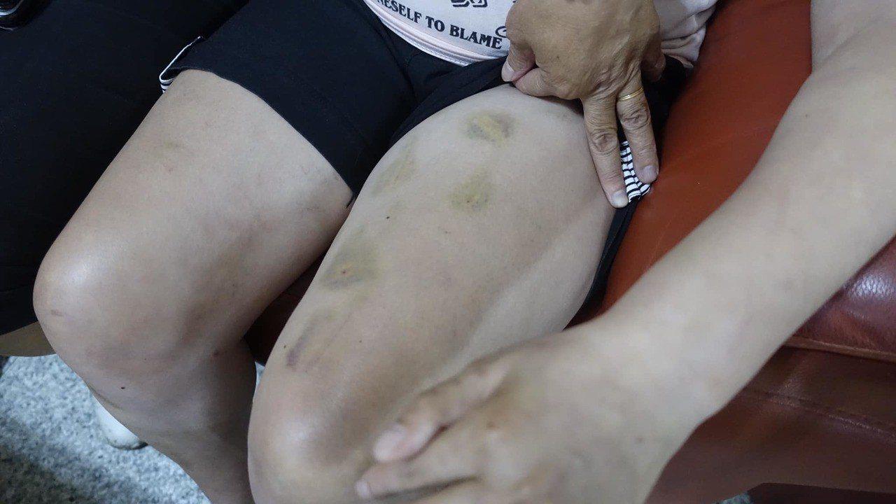 新北蘆洲一位身障者遭協會施虐,其母親向新北市議員李翁月娥求援。圖/翻攝李翁月娥臉...