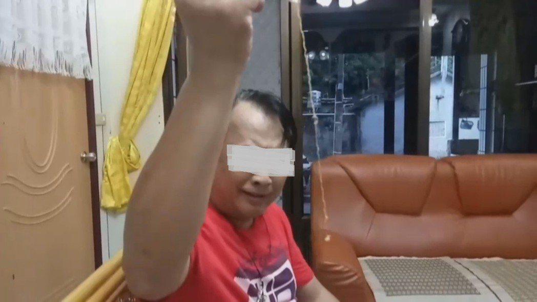 夾出20公分長的棉絮,讓男童家人都嚇一大跳。記者尤聰光/翻攝