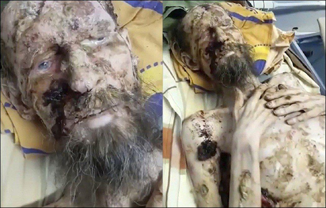 俄羅斯西伯利亞獵人隊伍日前在一處熊穴找到一名骨瘦如柴、模樣宛如「活屍」的一名男子...