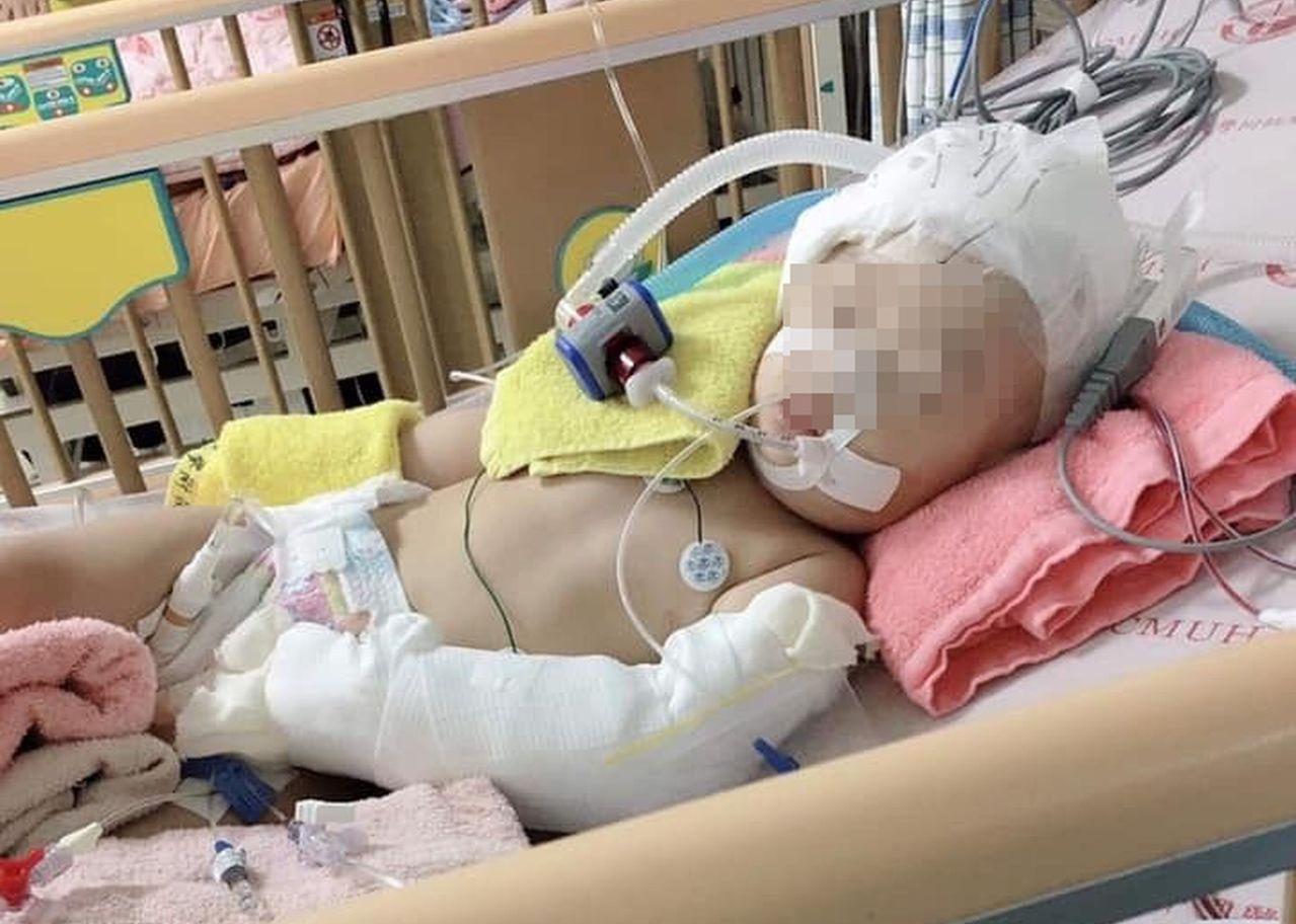 疑似受虐的一歲女嬰在中國醫藥大學兒童醫院加護病房全面搶救中。圖/翻攝自臉書《爆怨...