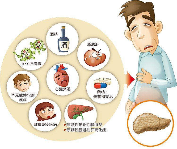 肝硬化可能的原因。 圖片提供/好心肝會刊