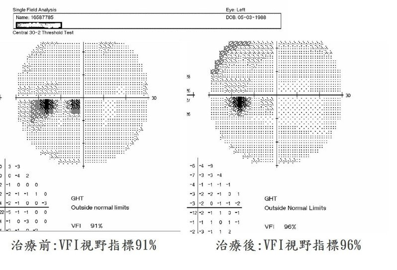 蔡小姐經治療後,視野從91%提高到96%。圖/台南市立醫院提供